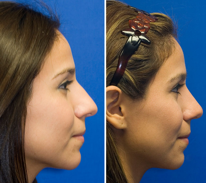 Hispanic female showing bulbous nose repair, bridge refinement and tip deprojection