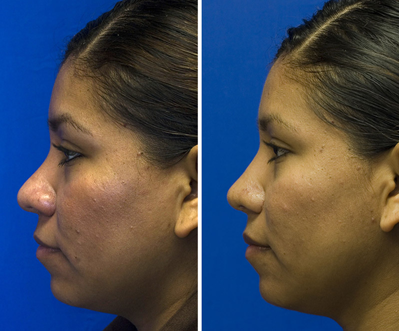Hispanic rhinoplasty bulbous tip repair with defatting and radix grafting
