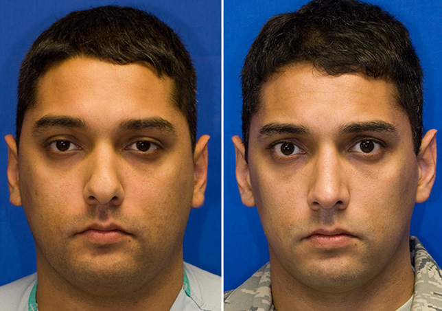 Hispanic male rhinoplasty to decrease tip bulbosity