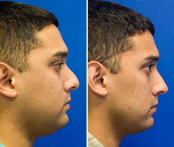 Hispanic male rhinoplasty to treat hump and bulbous tip