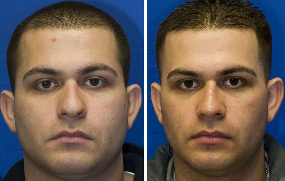 Hispanic male rhinoplasty before and after