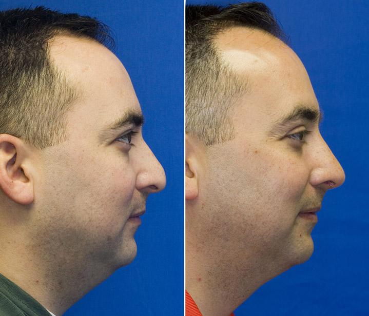 Hispanic male hump reduction profile.jpg