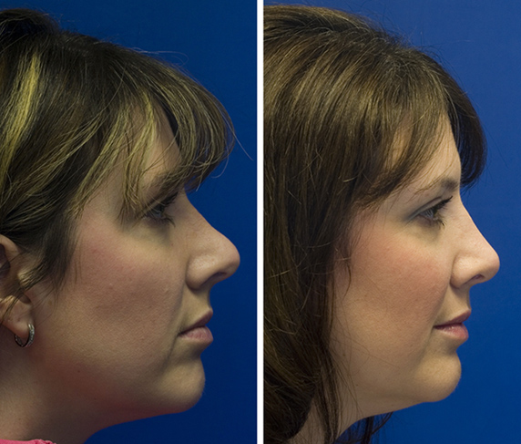 Revision rhinoplasty patient 2 upturned tip and polly beak deformity from prior rhinoplasty